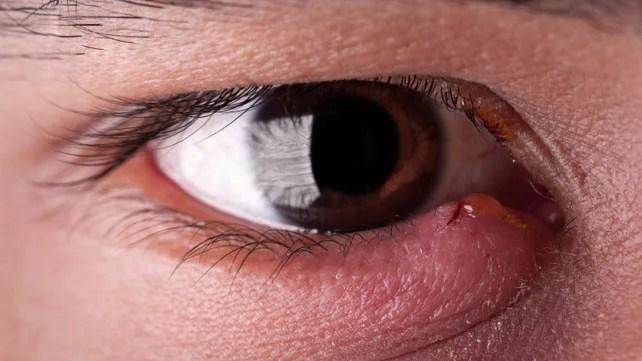 remedios caseros para bajar la hinchazon de un ojo