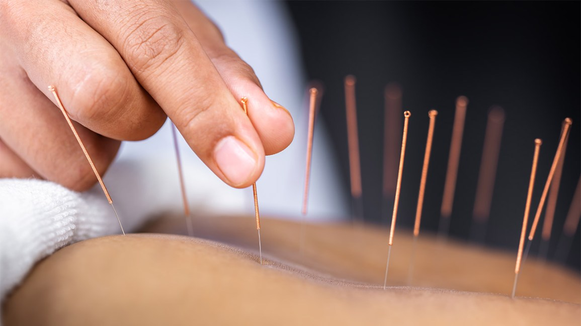 Acupuncture And Its Untold Effects