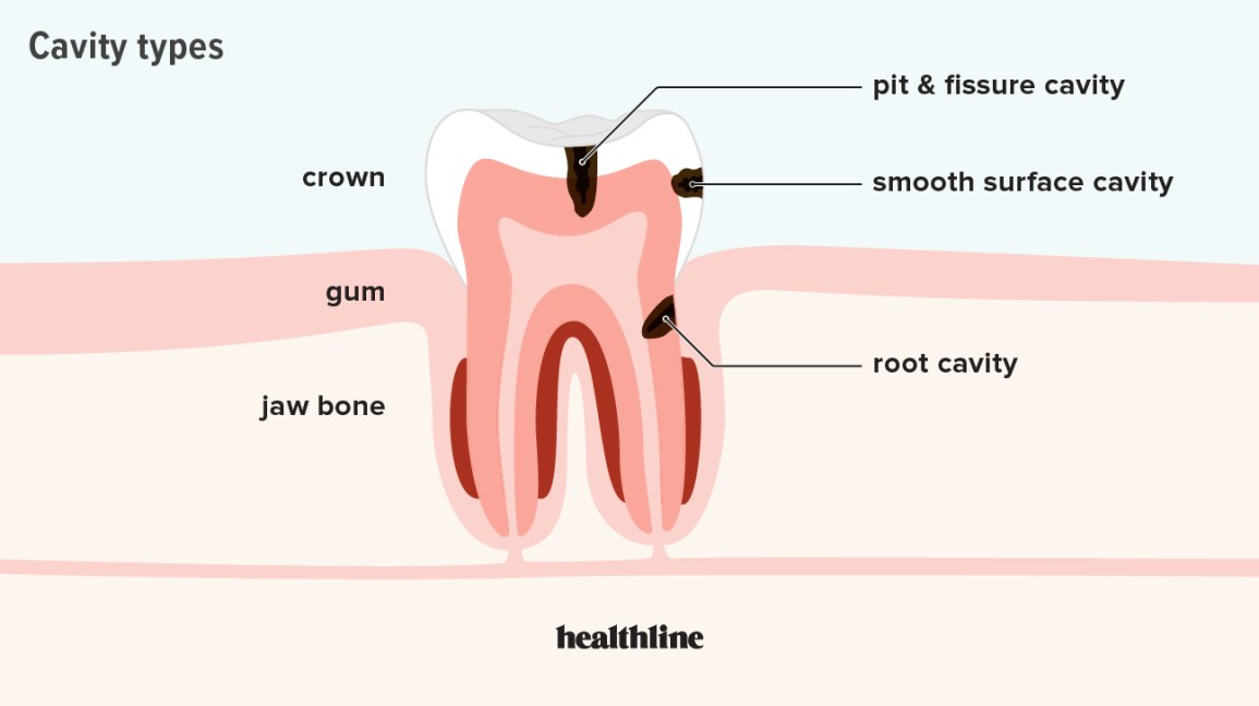 cavity, tooth, decay, root cavity, smooth surface cavity, pit and fissure cavity