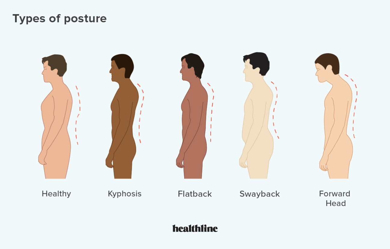 types of posture how to correct bad