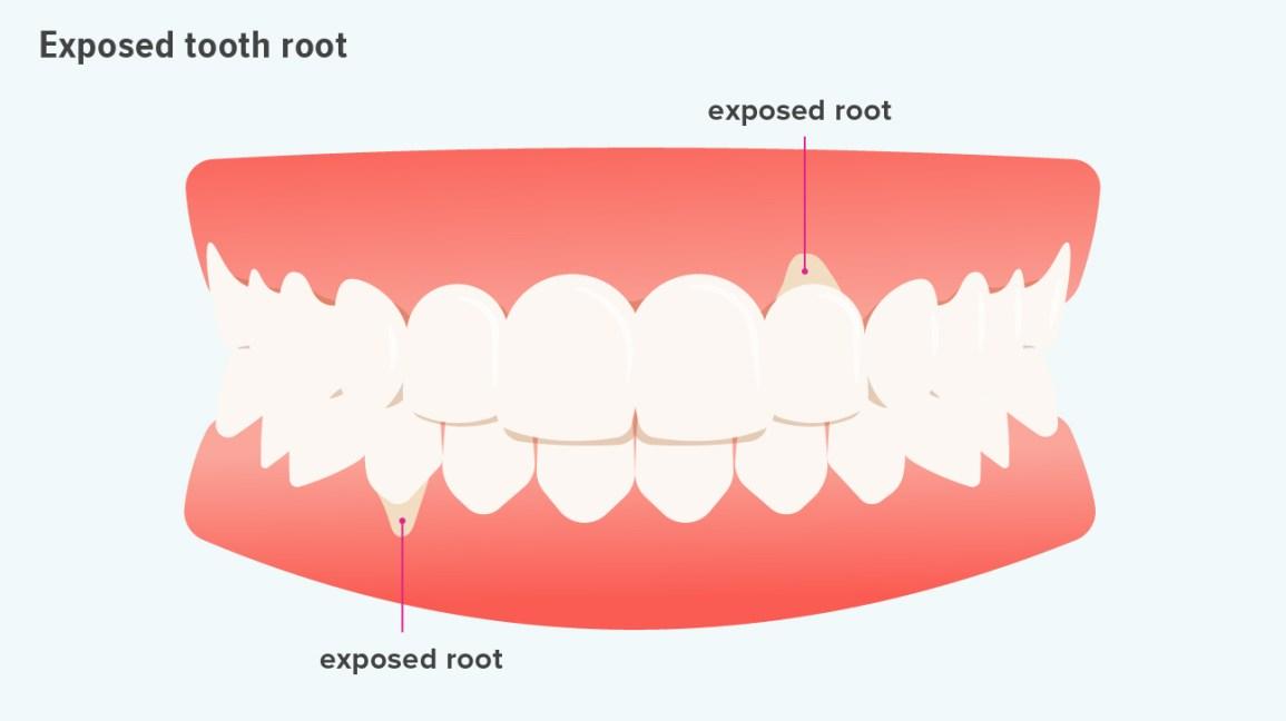 raiz de dente exposta