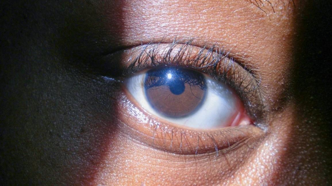 O que causa anéis azuis ao redor da íris dos olhos?