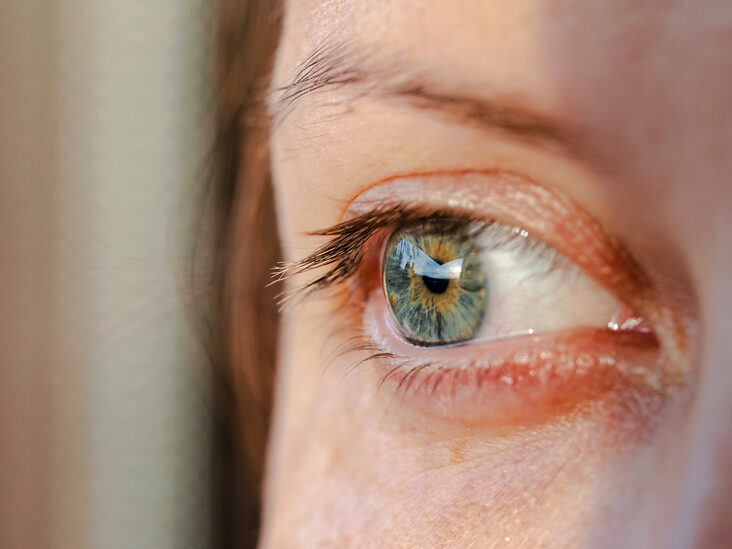 Dry Itchy Eyes: Symptoms, Treatment, and More