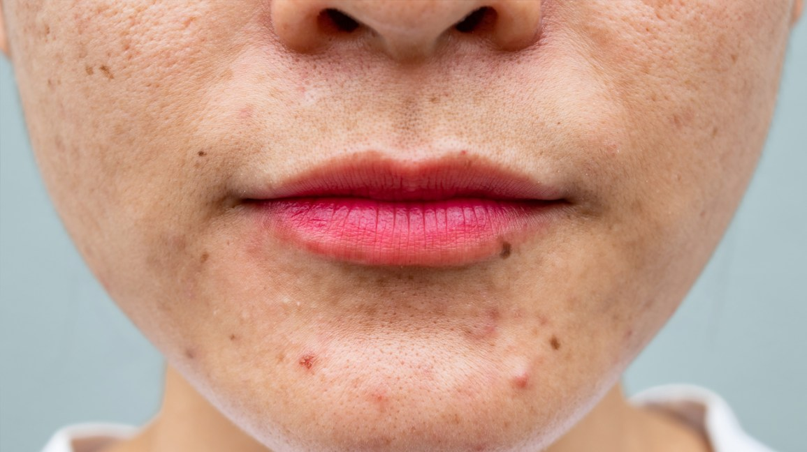 Closeup of acne on chin
