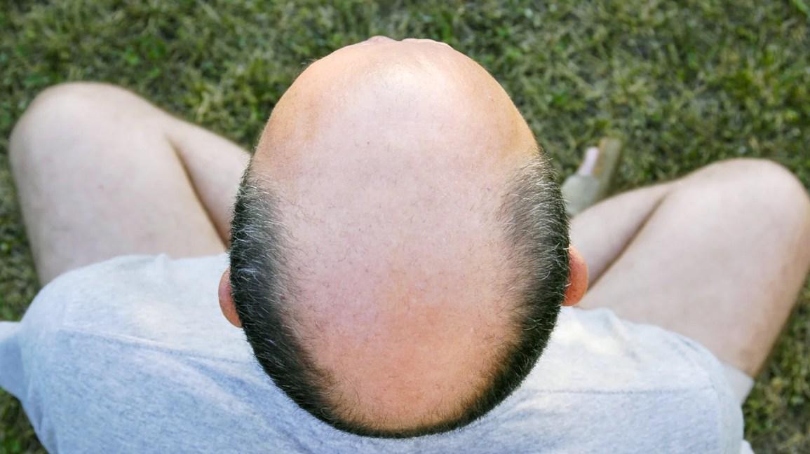 Guy date a bald reddit you would Guy Asks