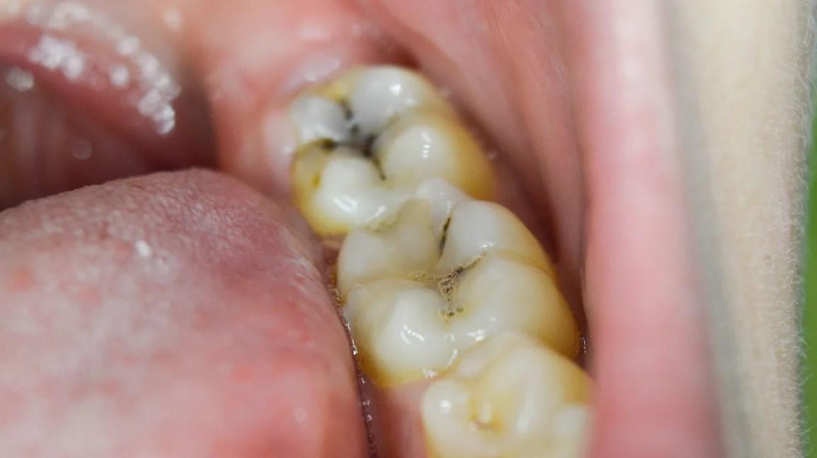 cárie, cárie dentária, como é uma cárie