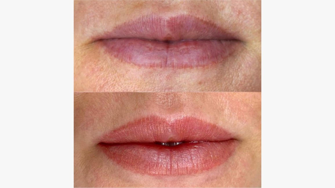 Lip Blushing Tattoo Procedure Benefits Side Effects Pictures Hidden from sight unless the lip is deliberately pulled down to reveal the design, some people chose to use the tattoo as a secret message. lip blushing tattoo procedure benefits