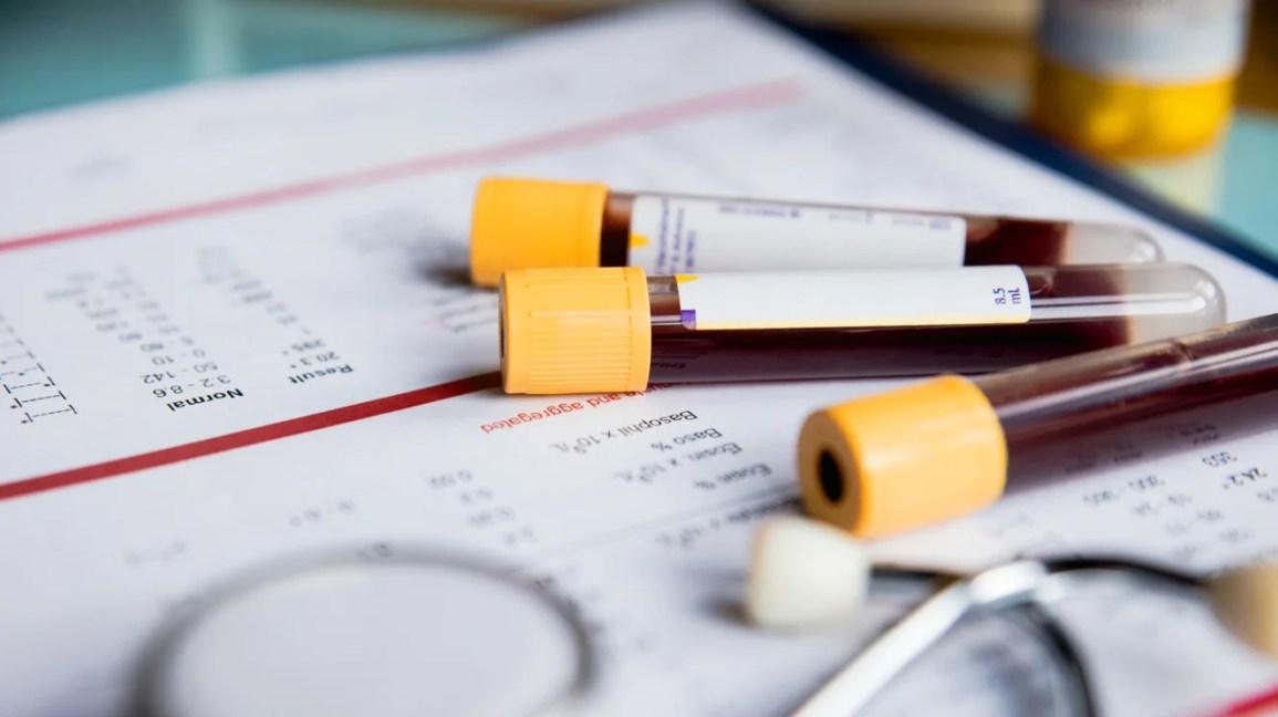 Fiale per determinare la carica virale dell'epatite C.
