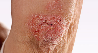 Butt Rashes Causes Home Remedies Treatment And More