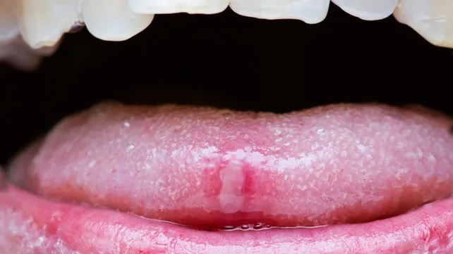 are warts on tongue dangerous