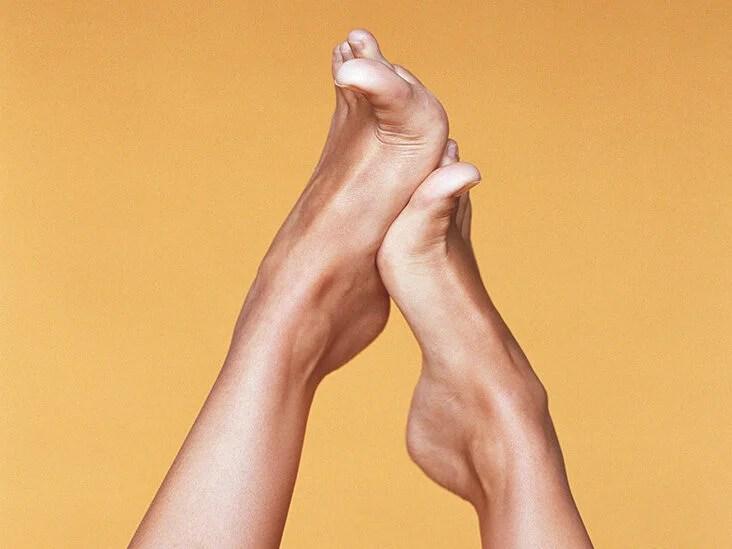 Flat Feet: Treatment, Causes & More