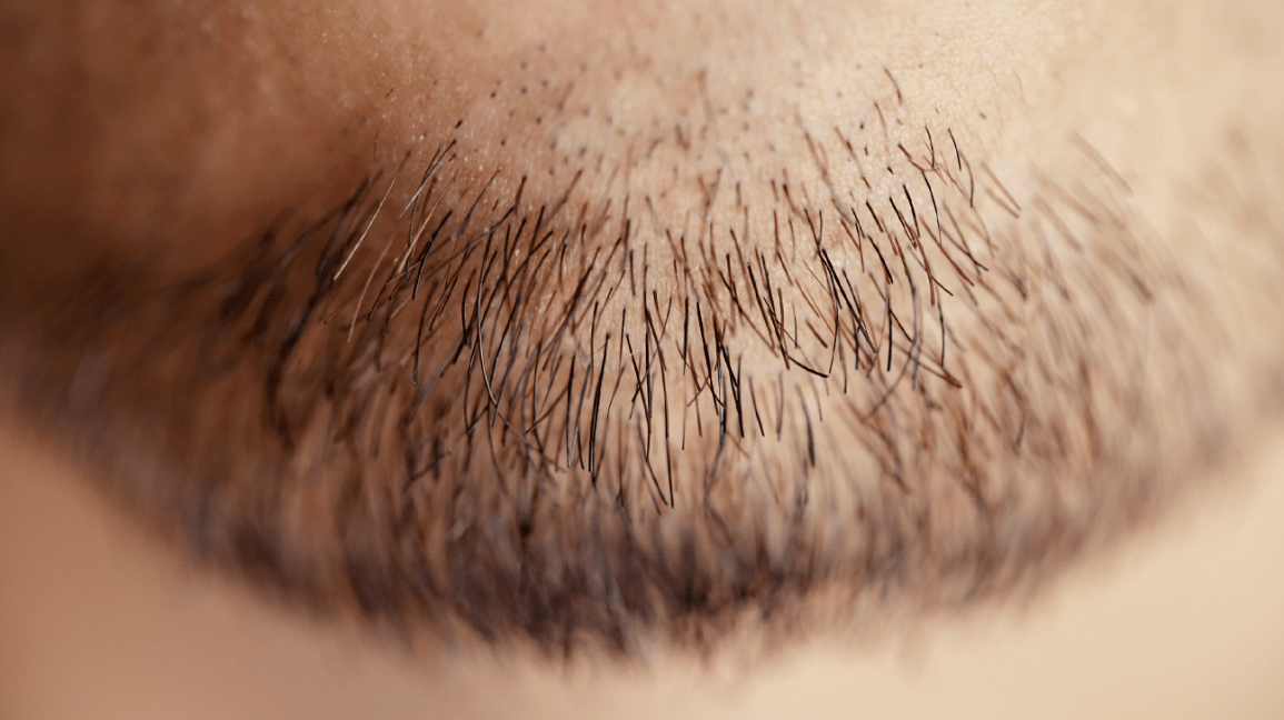 One multiple hairs follicle from growing Defects of