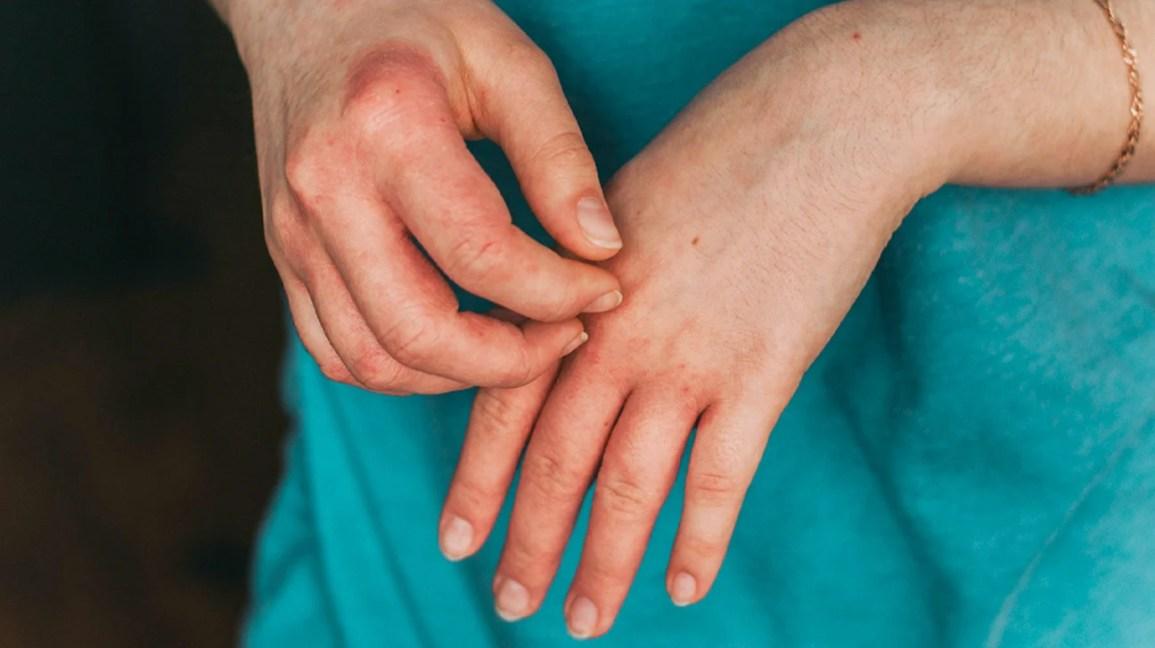 Hand allergy