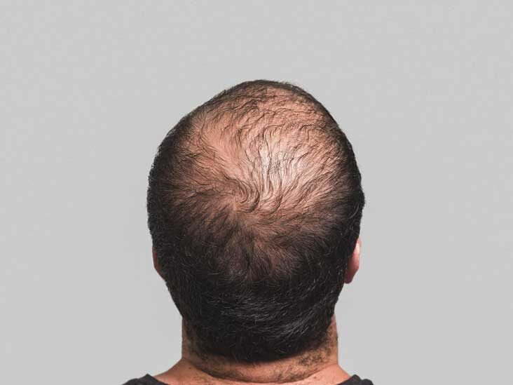 Hair Loss Prevention 22 Things You Can Do To Stop Your Hair Loss