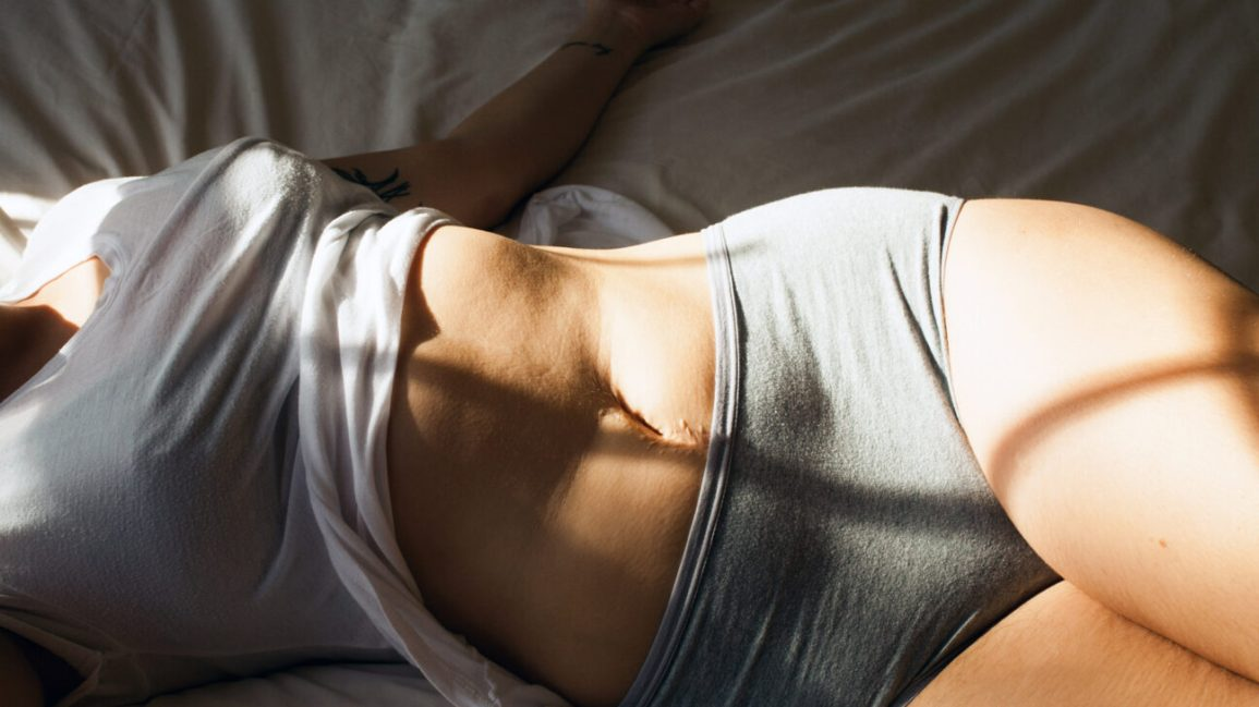 cropped image of a person's torso; they're clad in a white tank top, lifted to show their stomach, and gray cheeky-cut underwear