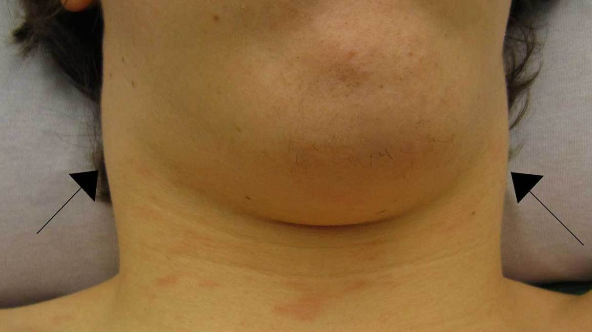 Bulto En El Cuello Imágenes Causas Síntomas Asociados Y Más