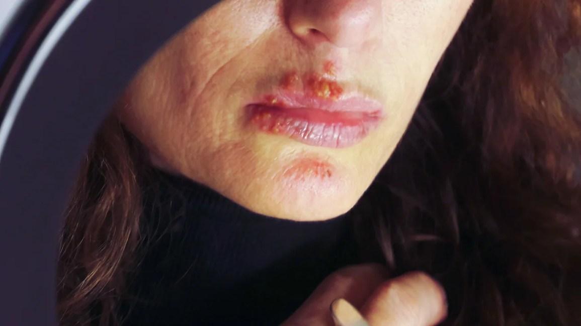 Kako se leci humani papilloma vírus. Preventing HPV tratament paraziti intestinali medicamentos
