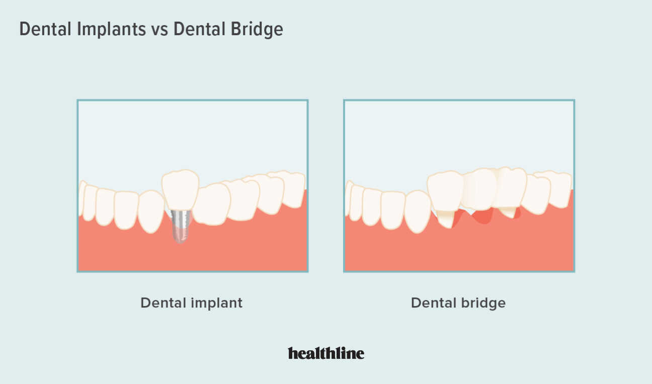 Health What Is a Dental Bridge and Who Needs One?