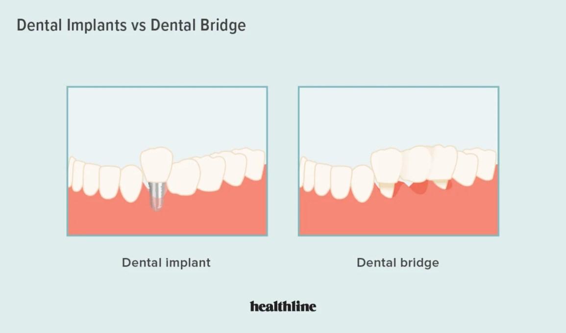 impianto vs ponte, impianto dentale, ponte dentale