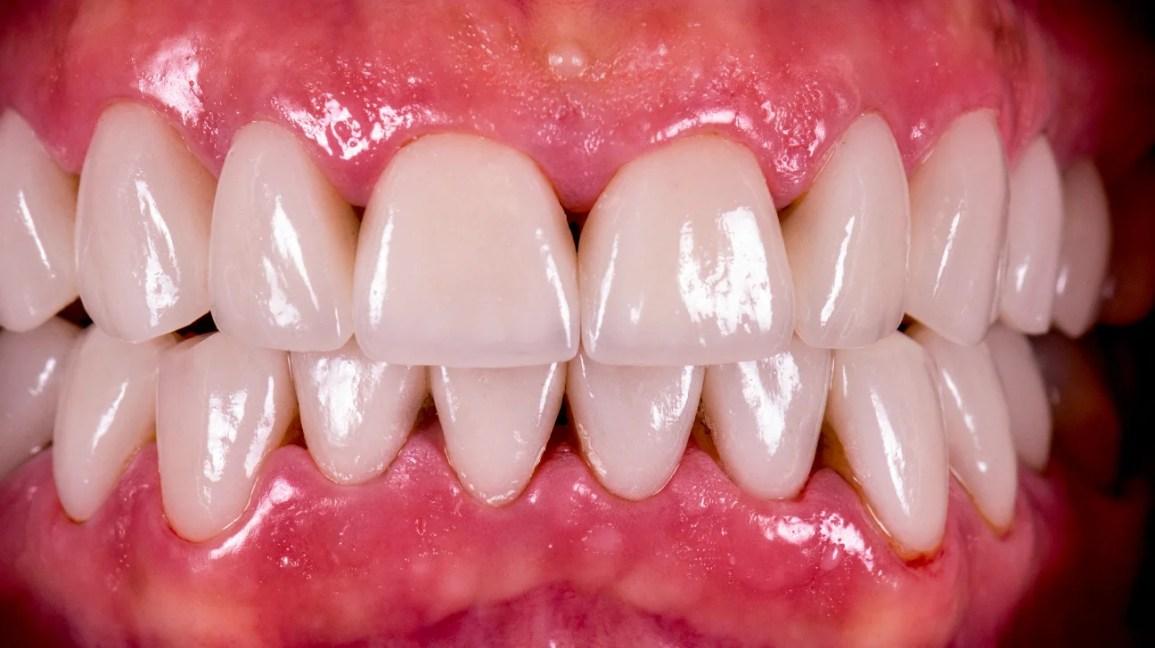 triângulos pretos entre os dentes