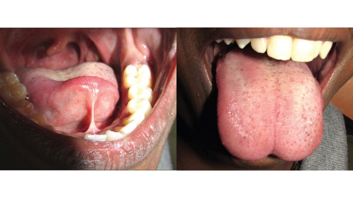tongue tie, adult, tongue tie in adults