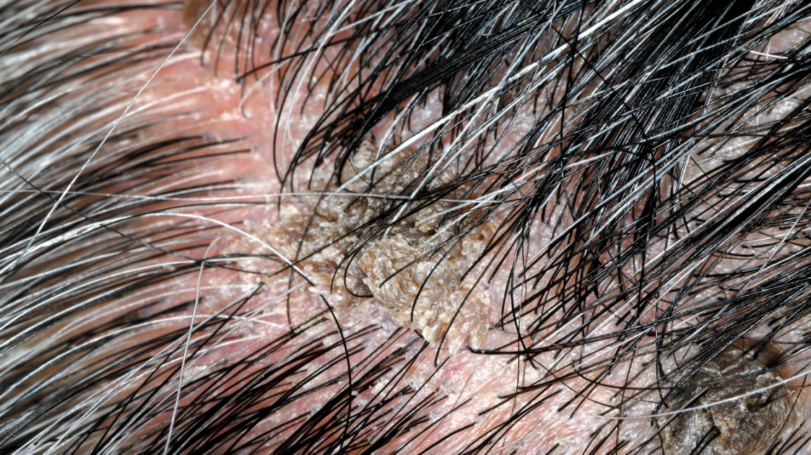 verruca, verruca sul cuoio capelluto, lesione del cuoio capelluto, verruca virale, verruca vulgaris, verruca comune