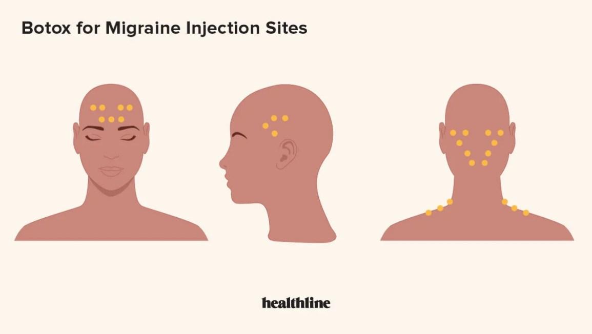 migrene meds pierdere în greutate
