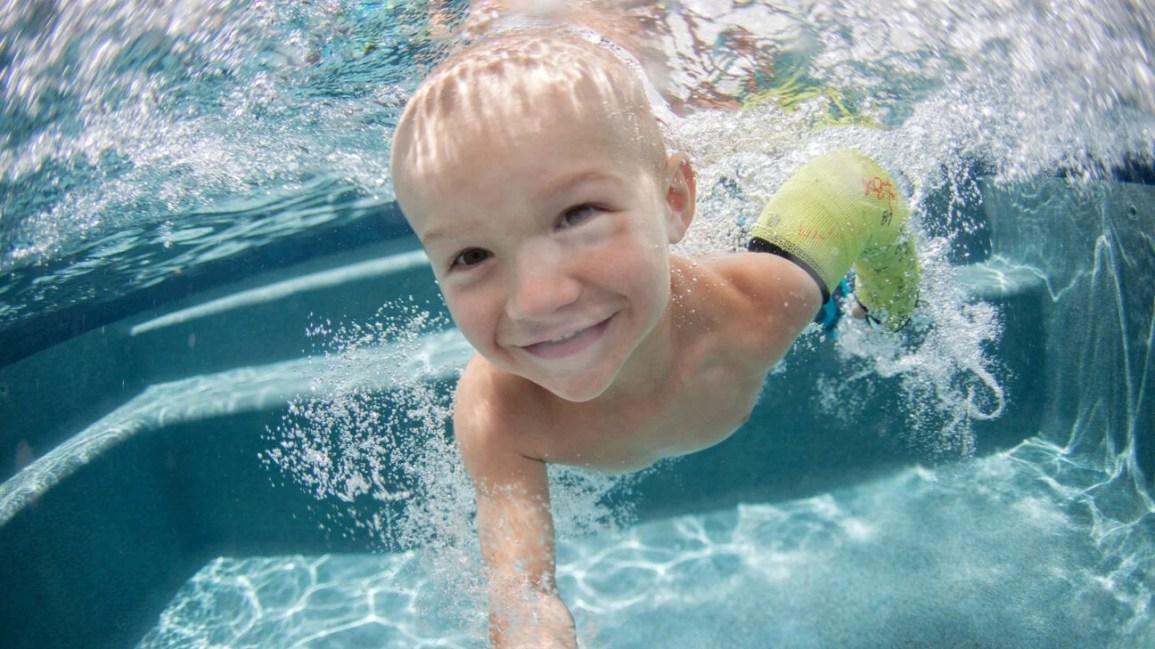 su geçirmez döküm, bir kol alçı ile bir havuzda genç çocuk