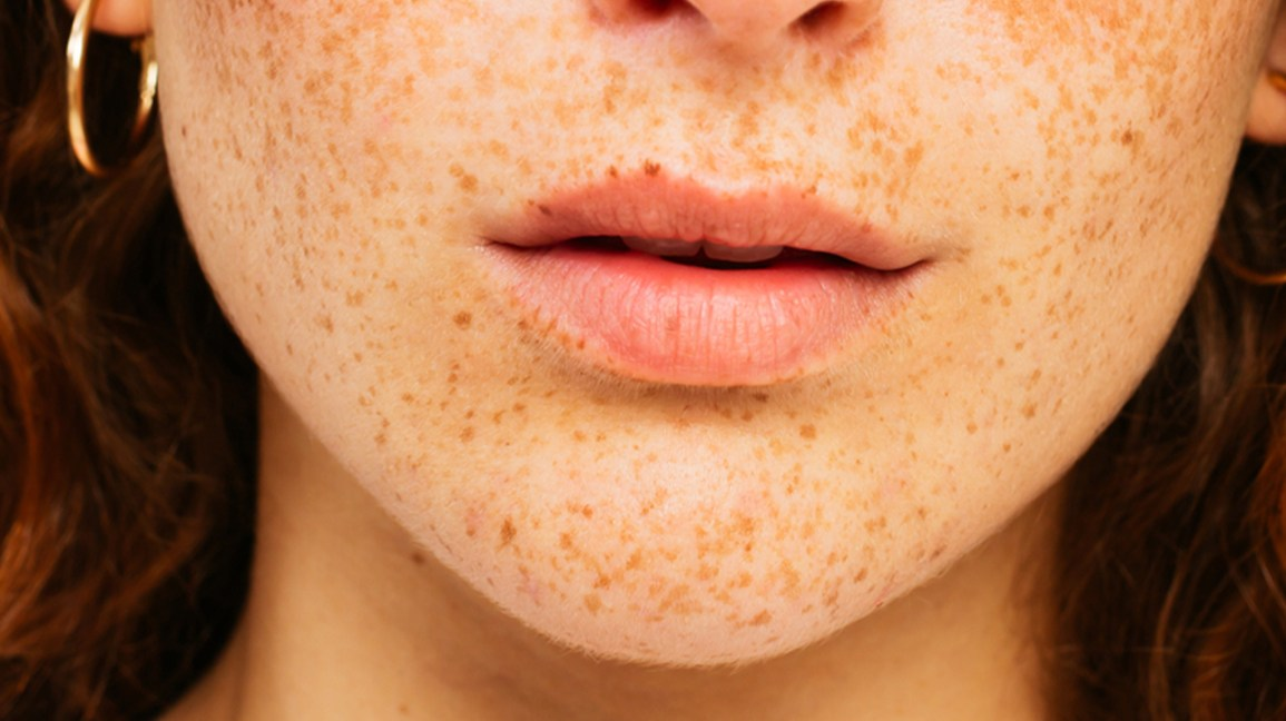 freckles on lips