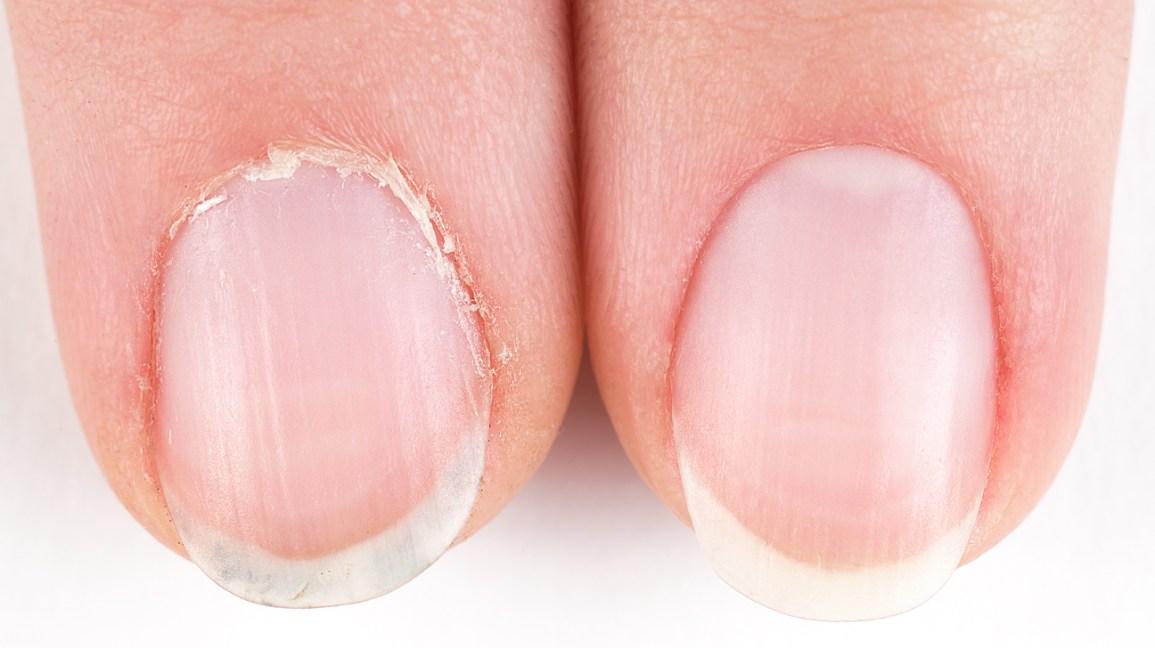 cutículas, pele seca, unhas, saúde das unhas, crescimento excessivo