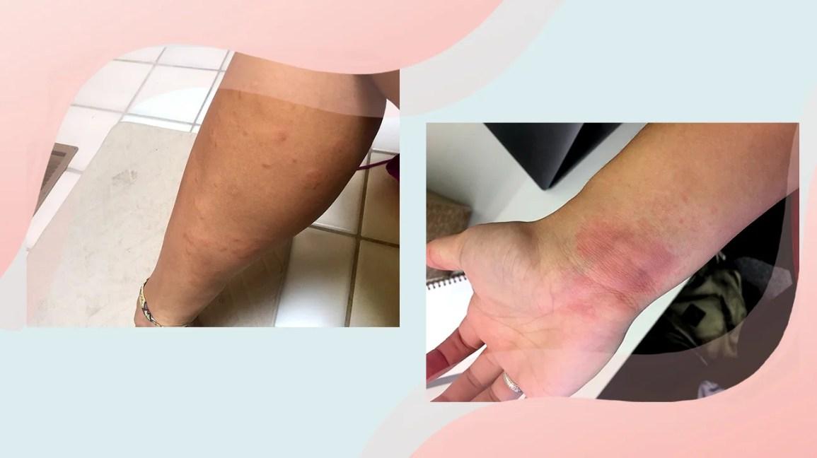 Macchie rosse macchiate, note come orticaria, possono essere viste sulle braccia e sui polsi di Hannah Austin.