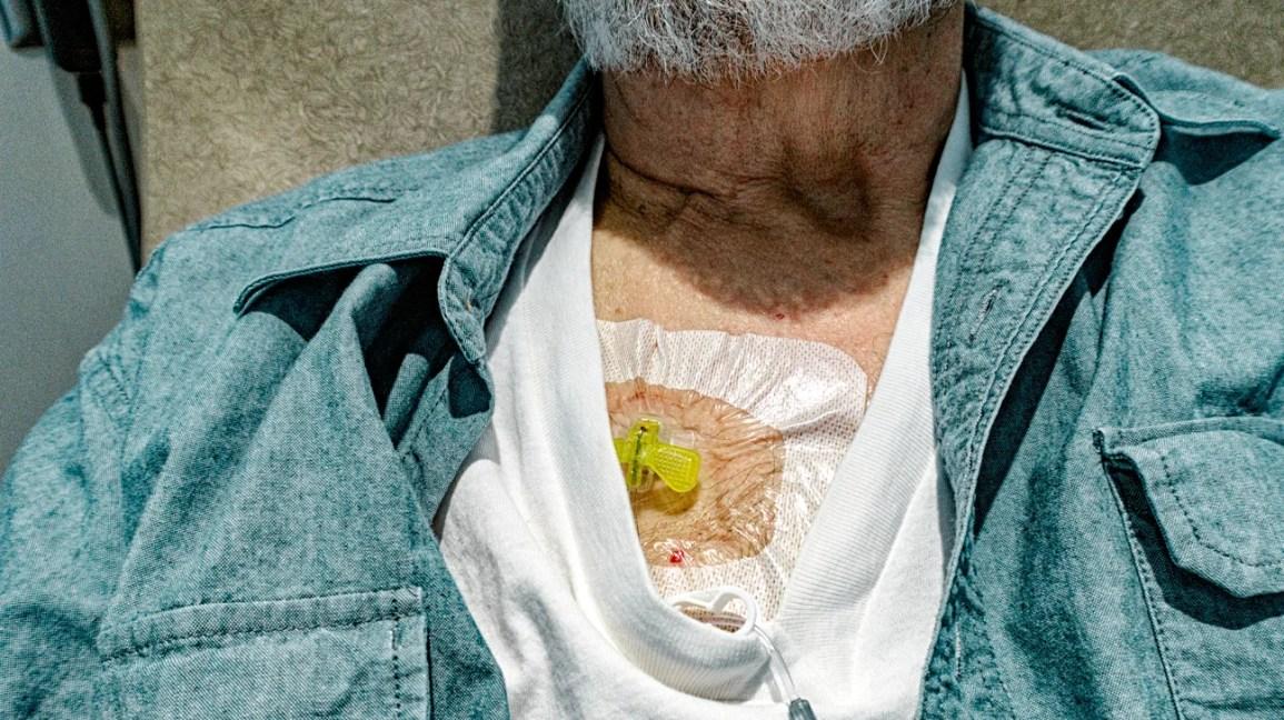 como dormir com um porto de quimioterapia, homem dormindo enquanto recebe quimioterapia através de um porto