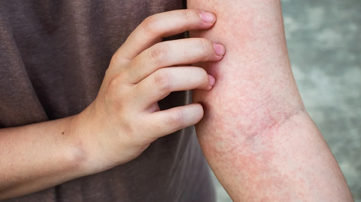 hepatic cancer rashes)