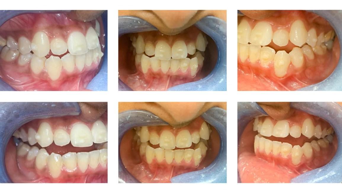 invisalign, invisalign ataşmanlar, diş telleri, dişler, ortodonti