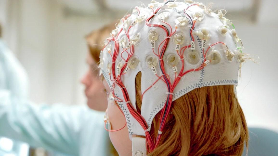 diagnóstico de epilepsia, menina usando equipamento para um EEG