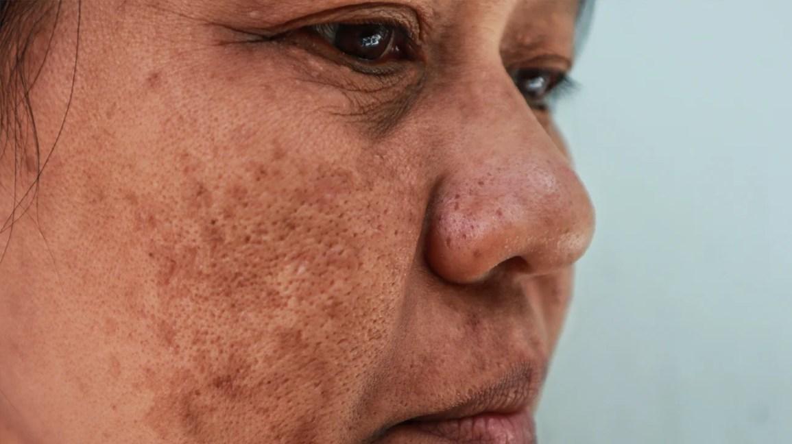Close do rosto de uma pessoa com melasma