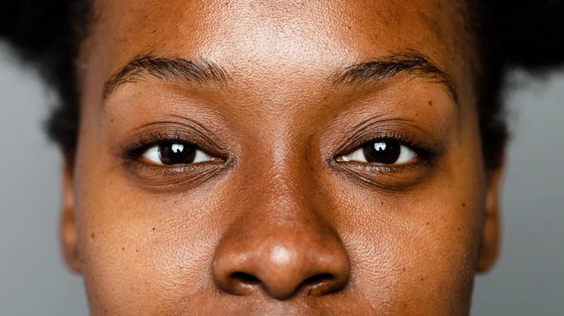 Mulher negra com hiperpigmentação