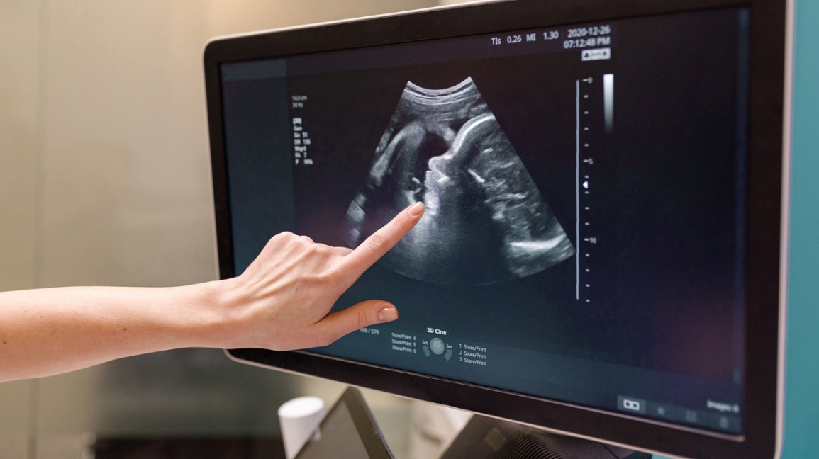 Person pointing at ultrasound screen