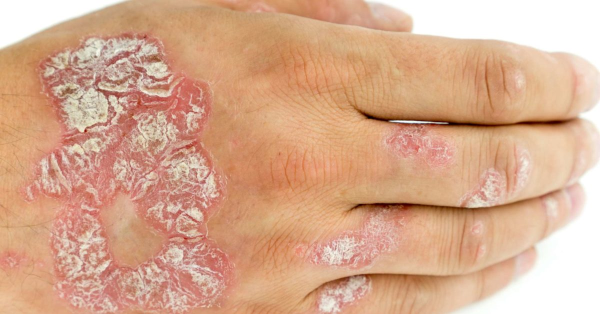 Types of mild psoriasis: Treatment symptoms and pictures