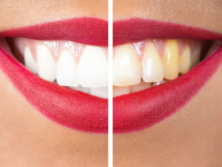 Hydrogen Peroxide Teeth Whitening Does It Work And Is It Safe