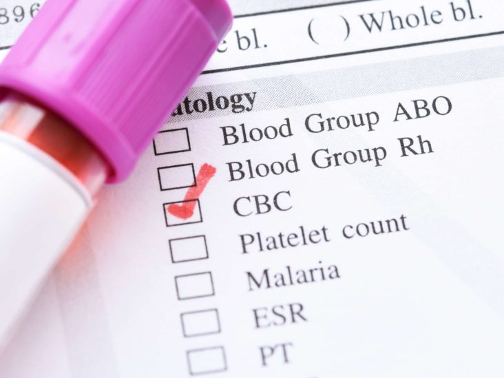 Platelet Count Blood Test What High Or Low Levels Mean And How It S Done