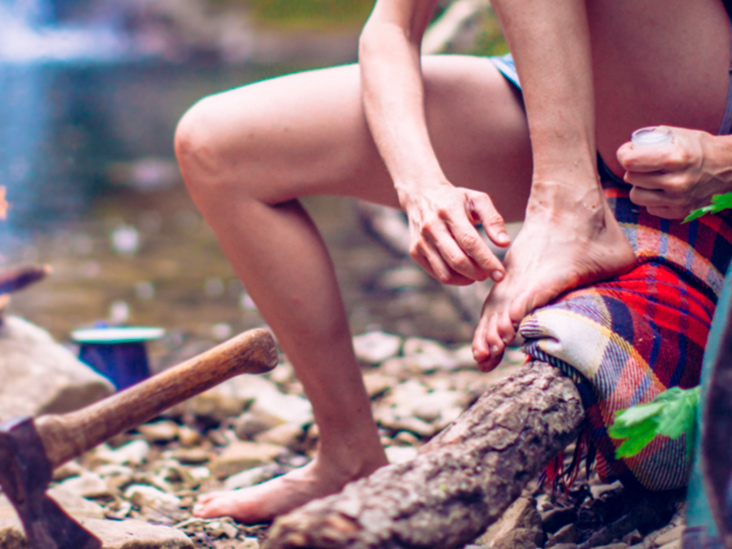 Plantar Wart Treatment Prevention And More