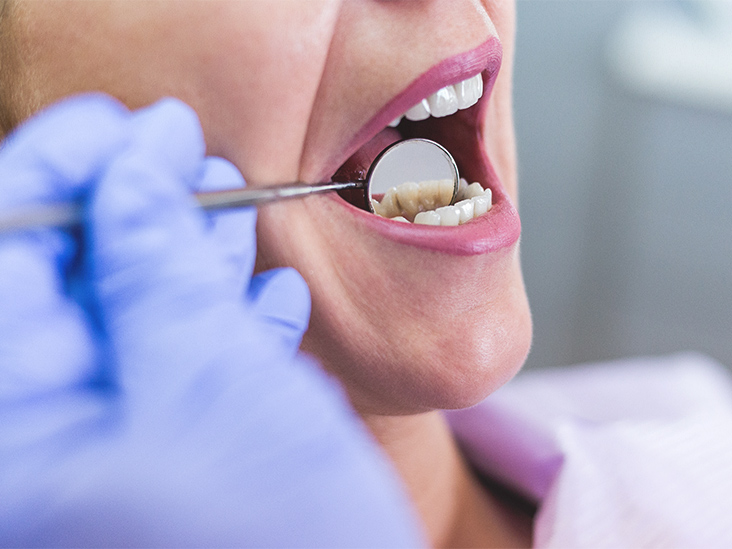 Sensitive Teeth: Causes, Symptoms, Treatments, and More