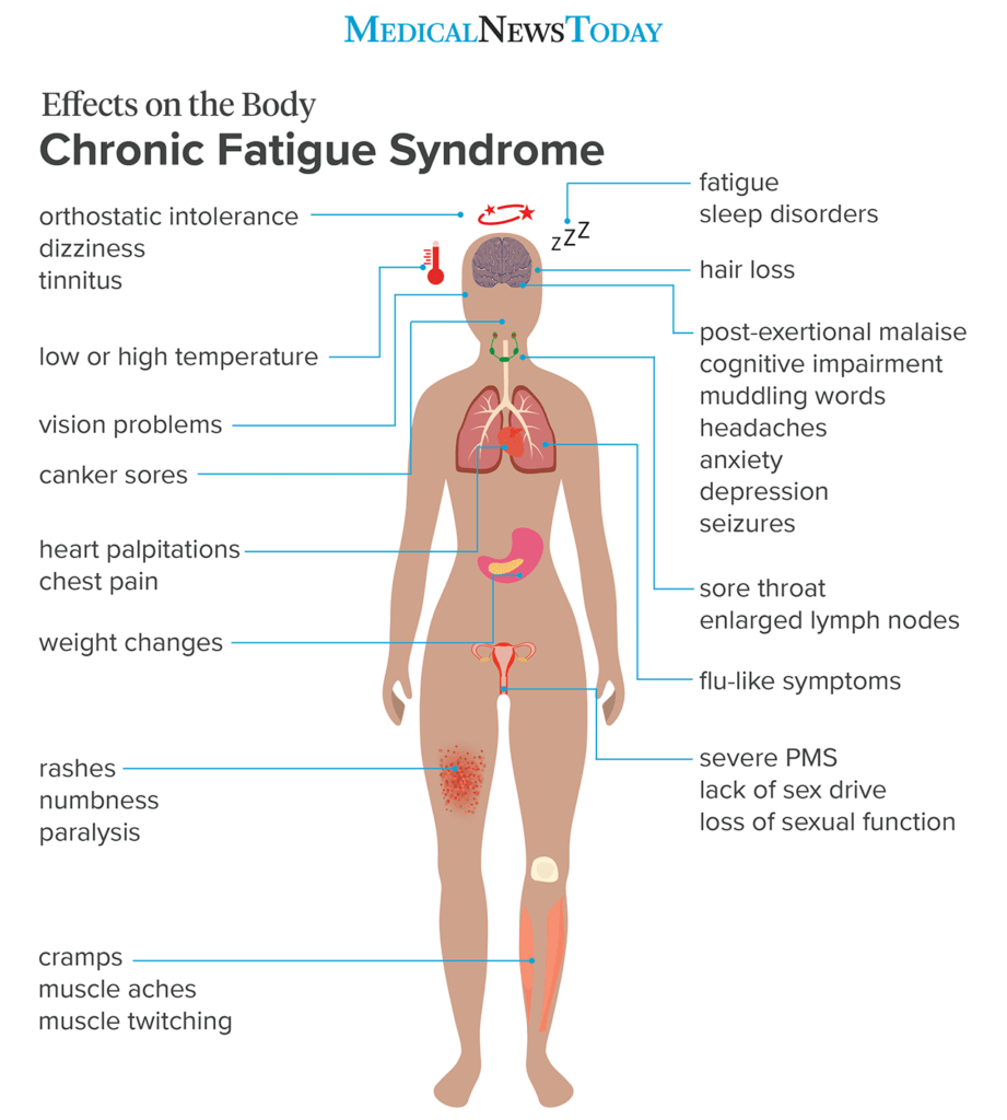 an infographic showing the effects of the body of What to know about chronic fatigue syndrome