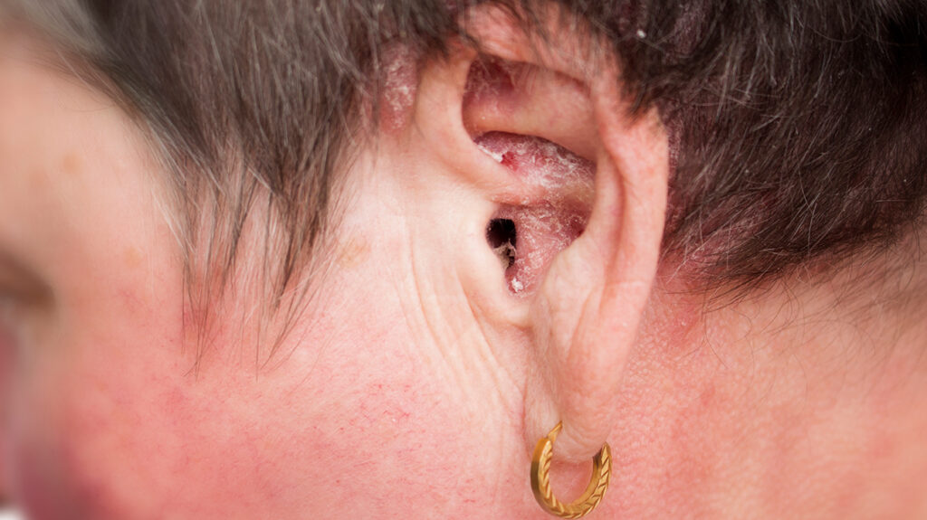 psoriasis treatment scalp and ears