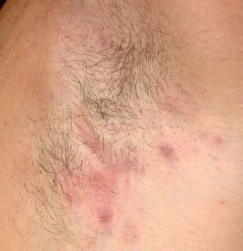 Hidradenitis suppurativa: Treatment, symptoms, and pictures