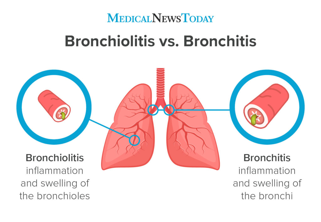 an infographic showing the difference between bronchiolitis and bronchitis
