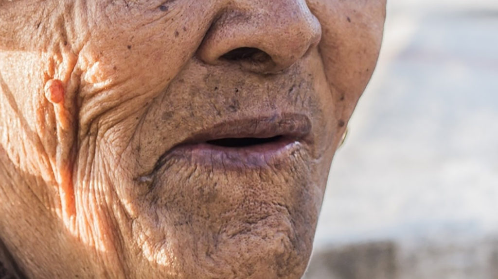 a woman with lip discoloration due to Cyanosis. Image credit: Ciernik M, 2016