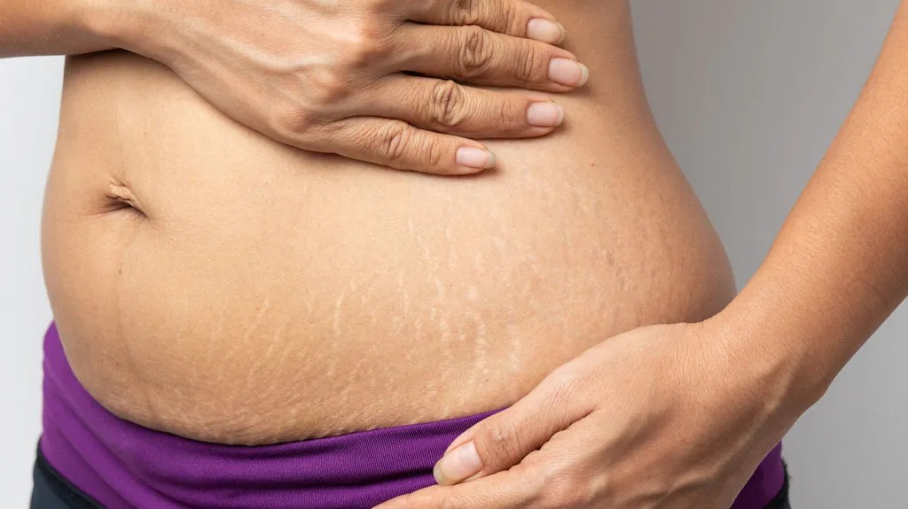 White Stretch Marks Treatments Causes And More