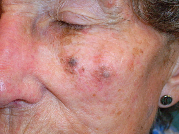 Spitz Nevus Pictures Diagnosis And Treatment